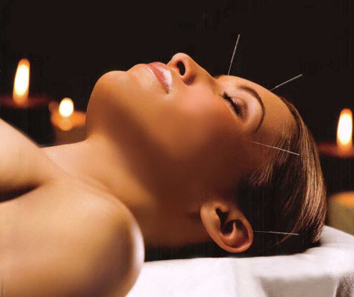 MajClub Wellness Centre - acupuncture
